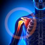 Протезы плечевого сустава